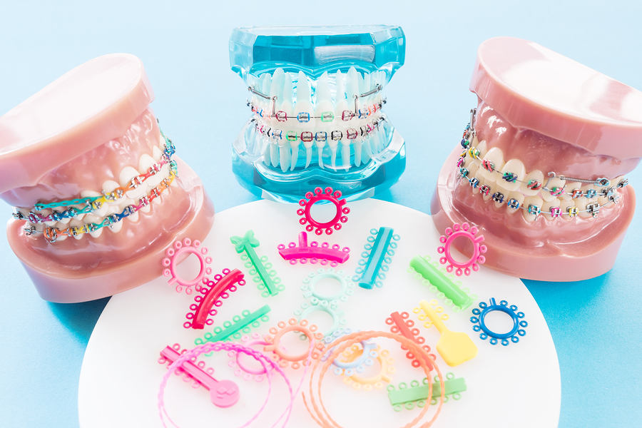 How braces straighten teeth
