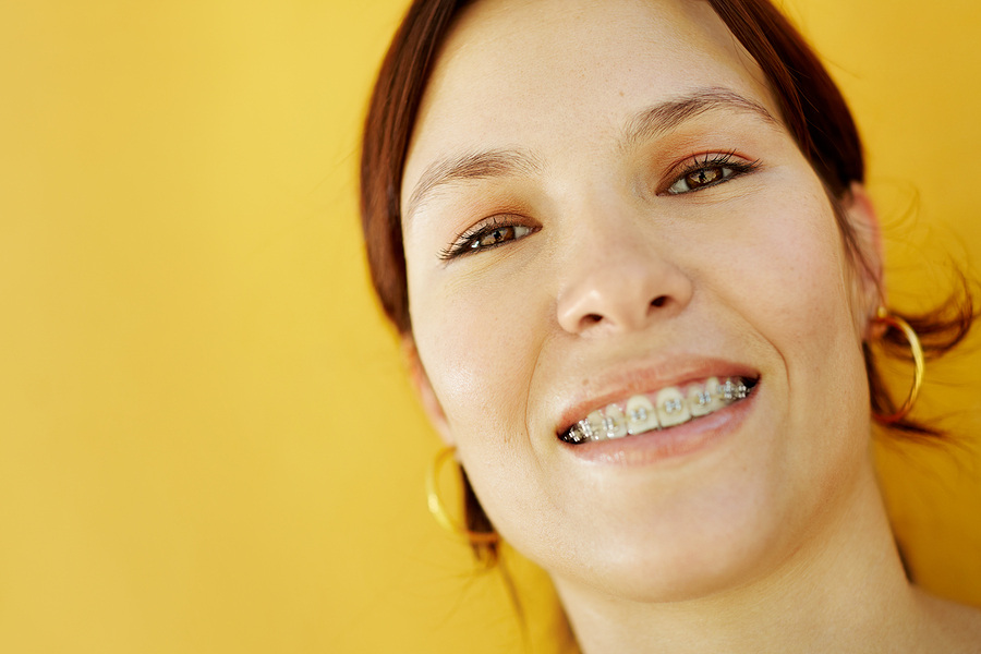 How does your smile change as you age?