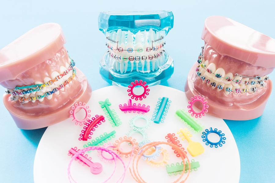 How braces straighten teeth